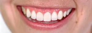 Denti implant