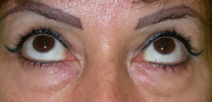 lézeres szem plasztikai műtét